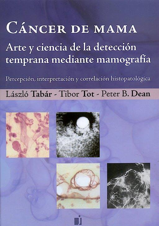 Portada del libro 9789871259052 Cáncer de Mama. Arte y Ciencia de la Detección Temprana Mediante Mamografía. Percepción, Interpretación y Correlación Histopatológica