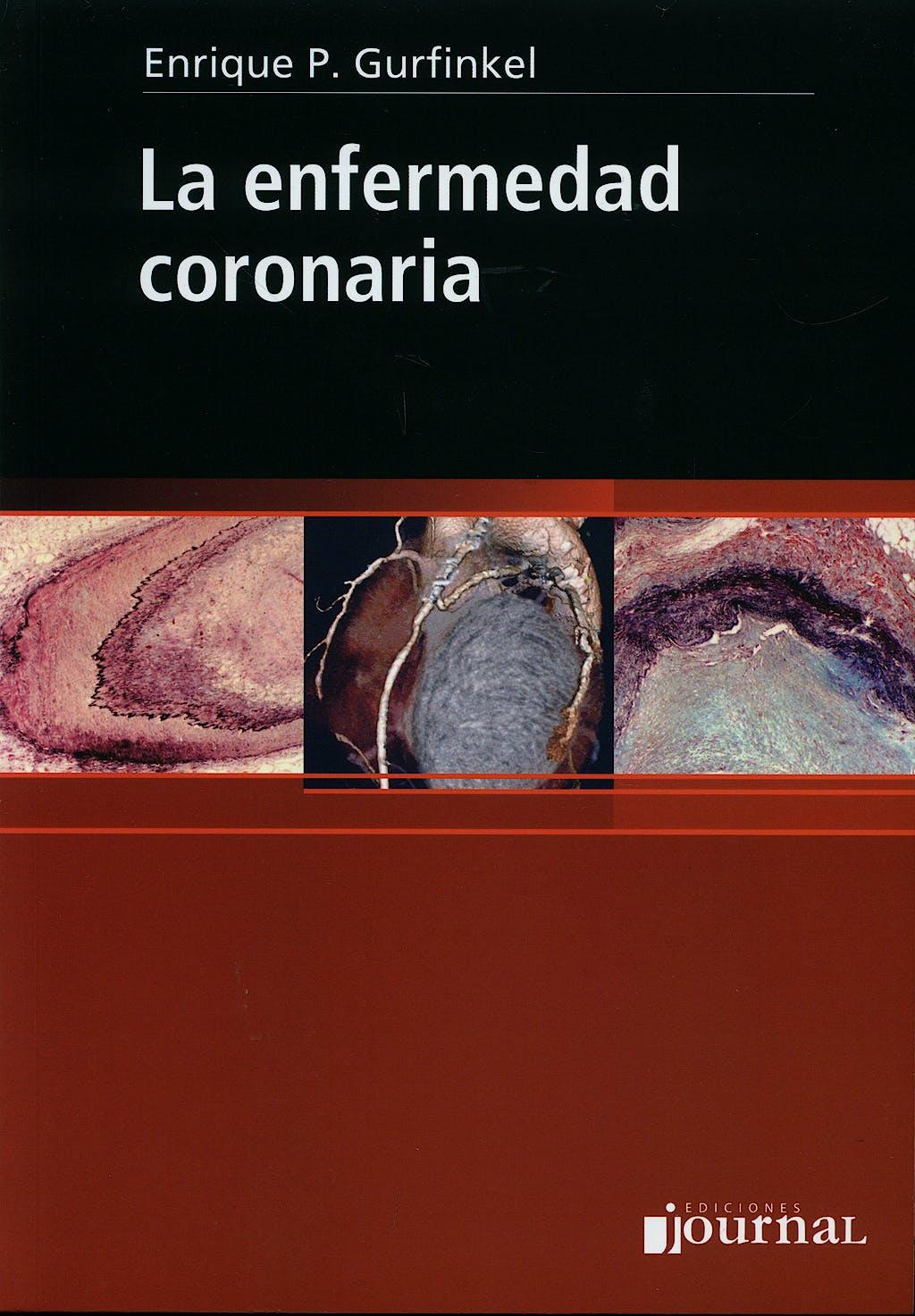 Portada del libro 9789871259175 La Enfermedad Coronaria