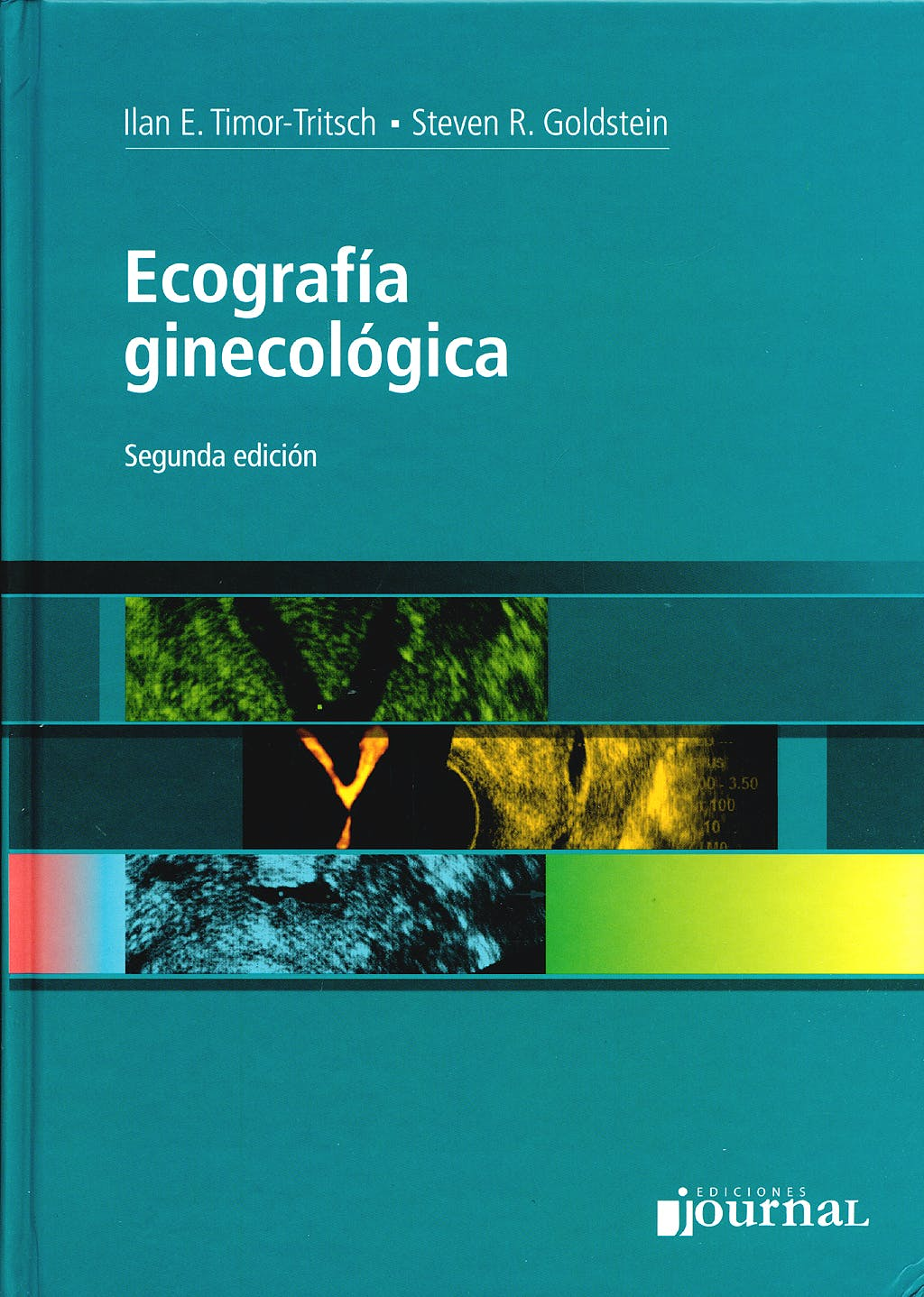 Portada del libro 9789871259311 Ecografía Ginecológica