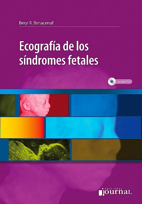 Portada del libro 9789871259427 Ecografia de los Sindromes Fetales + Dvd