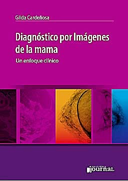 Portada del libro 9789871259441 Diagnostico por Imagenes de la Mama. un Enfoque Clinico