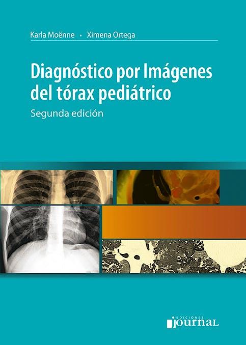 Portada del libro 9789871259632 Diagnóstico por Imágenes del Tórax Pediátrico