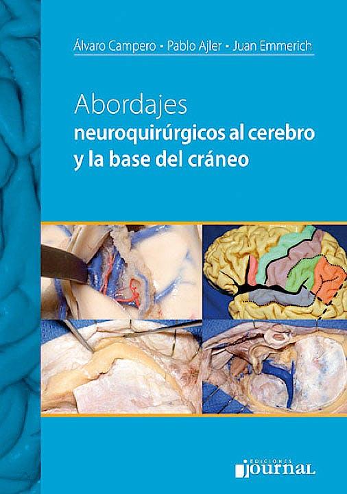Portada del libro 9789871259786 Abordajes Neuroquirúrgicos al Cerebro y la Base del Cráneo