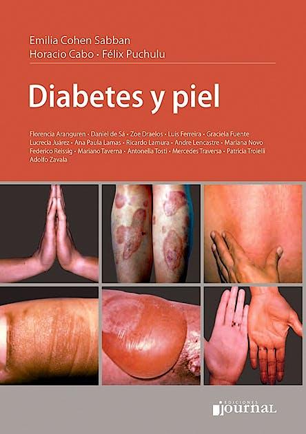 Portada del libro 9789871259953 Diabetes y Piel