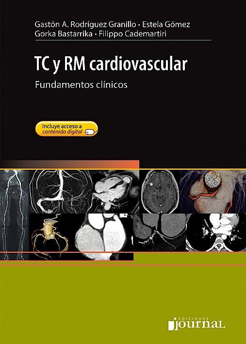 Portada del libro 9789871981236 TC y RM Cardiovascular. Fundamentos Clínicos