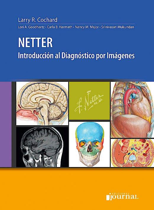 Portada del libro 9789871981311 Netter Introducción al Diagnóstico por Imágenes