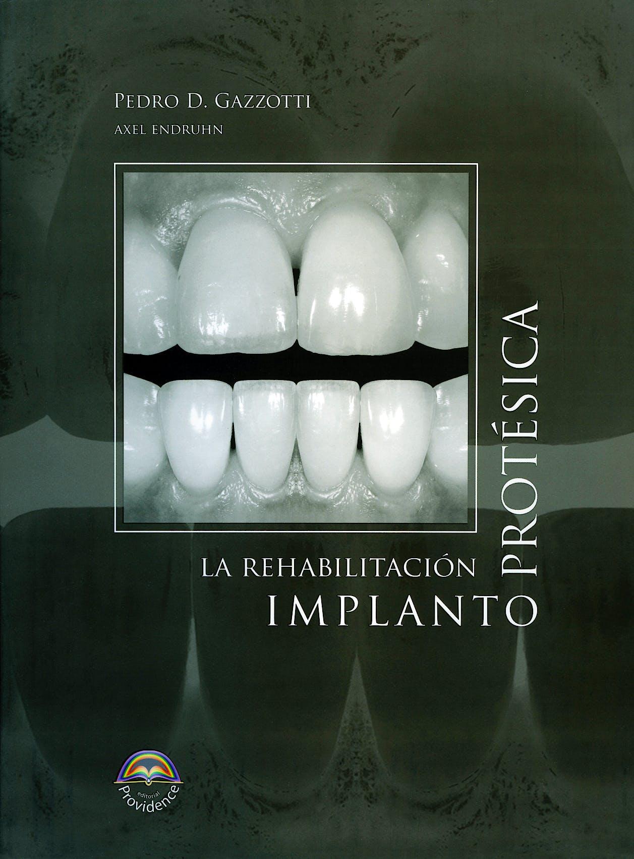 Portada del libro 9789872089047 La Rehabilitación Implantoprotésica