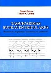 Portada del libro 9789873319792 Taquicardias Supraventriculares. Mecanismos, Diagnóstico y Tratamiento por Cateterismo