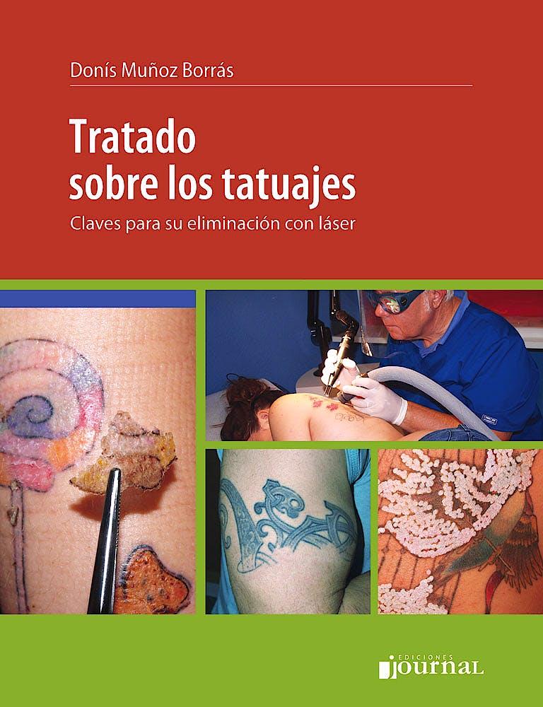 Portada del libro 9789873954184 Tratado sobre los Tatuajes. Claves para su Eliminación con Láser