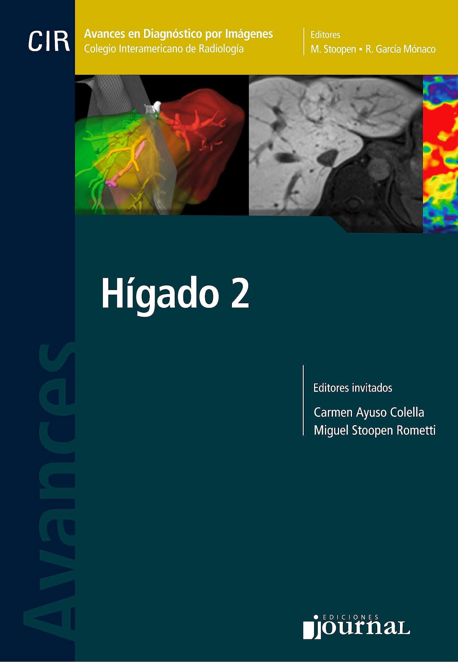 Portada del libro 9789873954344 Avances en Diagnóstico por Imágenes 16: Hígado 2 (CIR, Colegio Interamericano de Radiología)