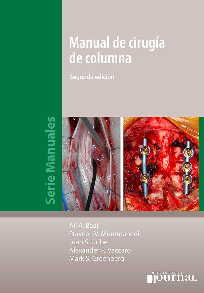 Portada del libro 9789873954535 Manual de Cirugía de Columna