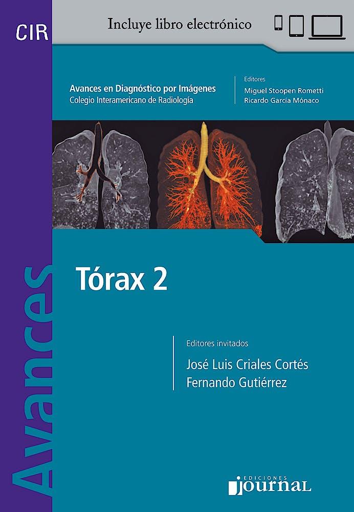 Portada del libro 9789874922038 Avances en Diagnóstico por Imágenes 17: Tórax 2 (CIR, Colegio Interamericano de Radiología) (Libro + Libro Electrónico)