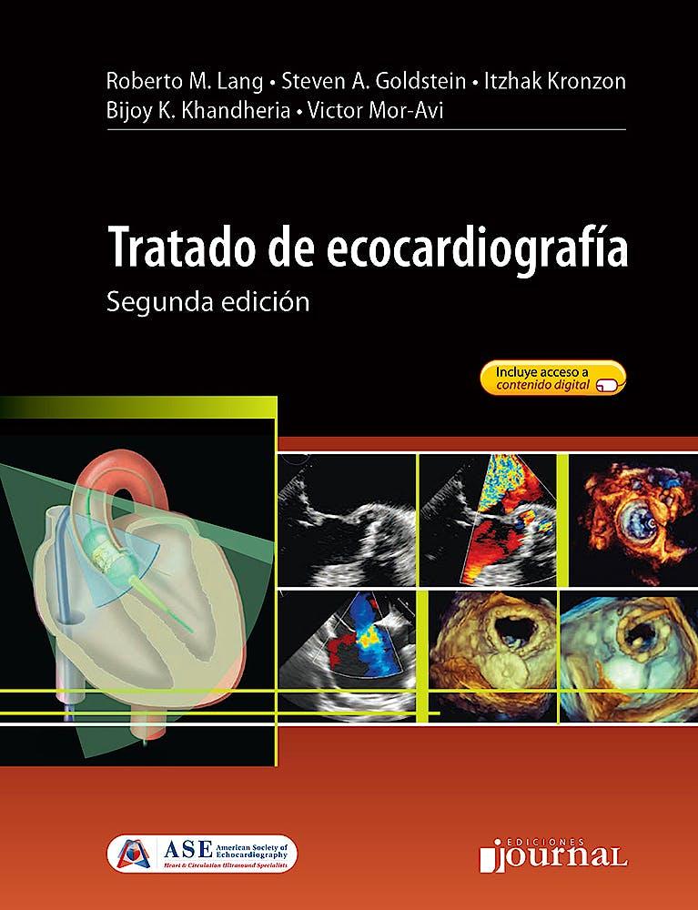 Portada del libro 9789874922052 Tratado de Ecocardiografía