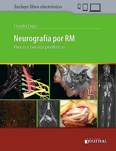 Portada del libro 9789874922403 Neurografía por RM. Plexos y Nervios Periféricos