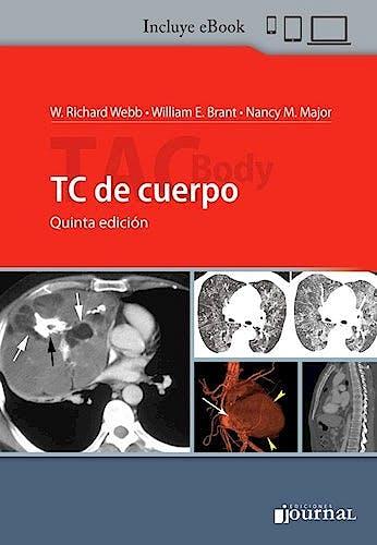Portada del libro 9789874922700 TC de Cuerpo (Incluye E-Book)