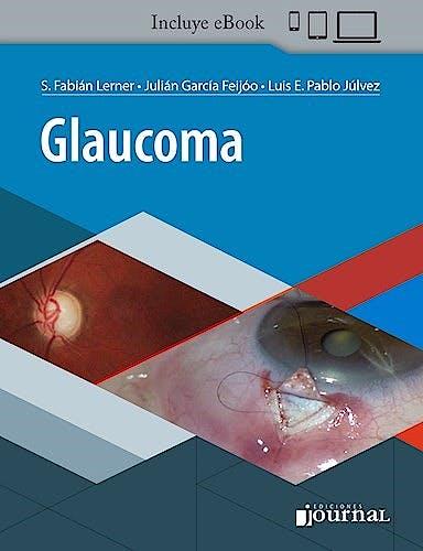 Portada del libro 9789874922724 Glaucoma (Incluye E-Book)