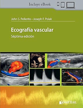 Portada del libro 9789874922854 Ecografía Vascular