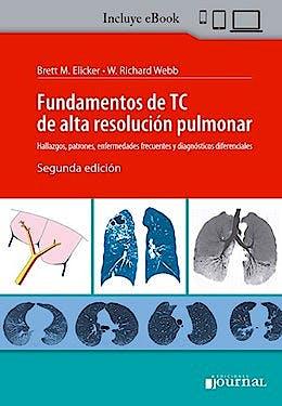 Portada del libro 9789874922953 Fundamentos de TC de Alta Resolución Pulmonar. Hallazgos, Patrones, Enfermedades Frecuentes y Diagnósticos Diferenciales