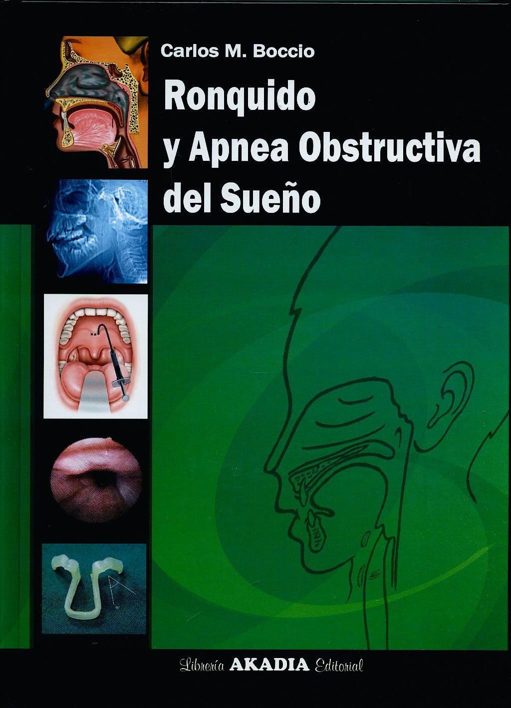 Portada del libro 9789875701137 Ronquido y Apnea Obstructiva del Sueño