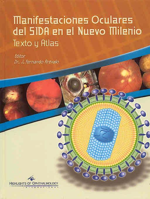 Portada del libro 9789962613336 Manifestaciones Oculares del Sida en el Nuevo Milenio. Texto y Atlas