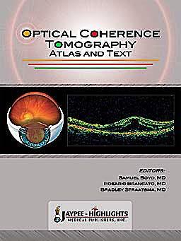 Portada del libro 9789962678045 Optical Coherence Tomography. Atlas and Text