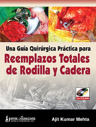 Portada del libro 9789962678182 Una Guia Quirurgica Practica para Reemplazos Totales de Rodilla y Cadera + Dvd-Rom