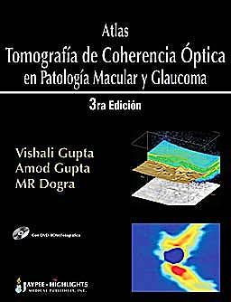 Portada del libro 9789962678304 Atlas Tomografía de Coherencia Óptica en Patología Macular y Glaucoma + DVD-ROM