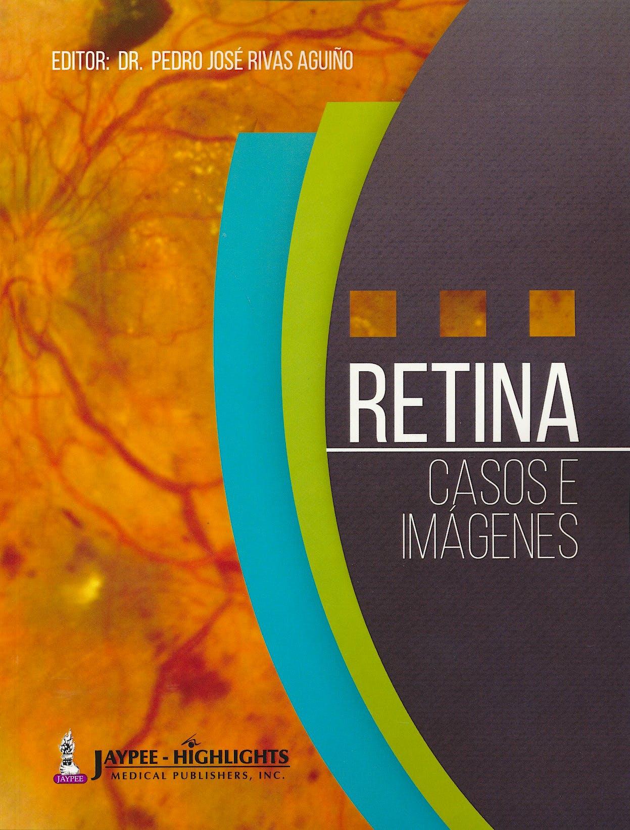 Portada del libro 9789962678908 Retina. Casos e Imágenes