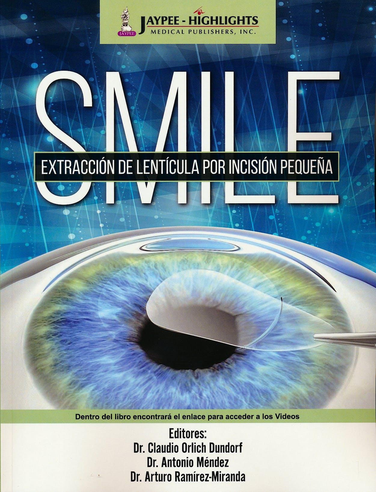 Portada del libro 9789962678991 SMILE. Extracción de Lentícula por Incisión Pequeña