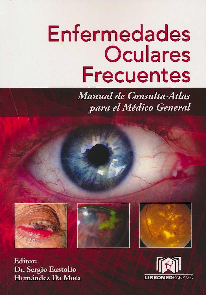 Portada del libro 9789962906100 Enfermedades Oculares Frecuentes. Manual de Consulta-Atlas para el Médico General