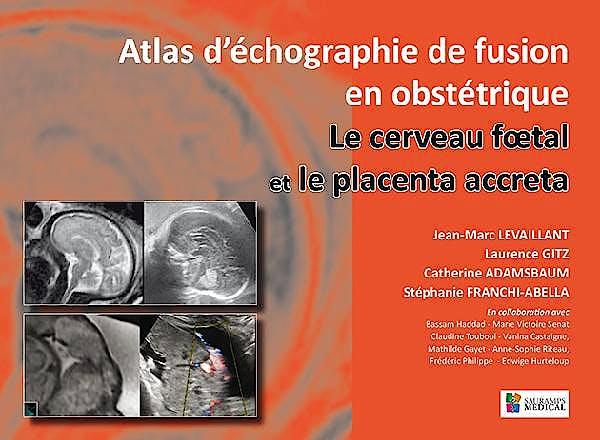 Portada del libro 9791030300369 Atlas d´Échographie de Fusion en Obstétrique. Le Cerveau Foetal et le Placenta Accreta