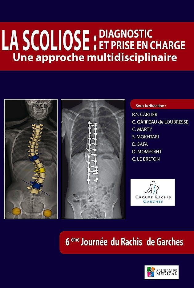 Portada del libro 9791030300390 La Scoliose: Diagnostic Et Prise en Charge. Une Approche Multidisciplinaire